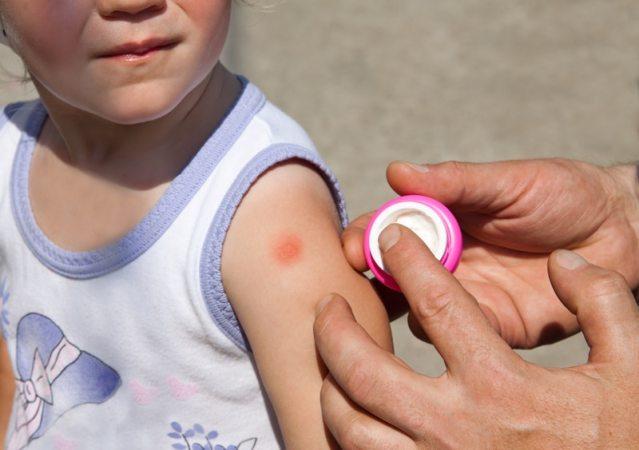 niño con una picadura de mosquito